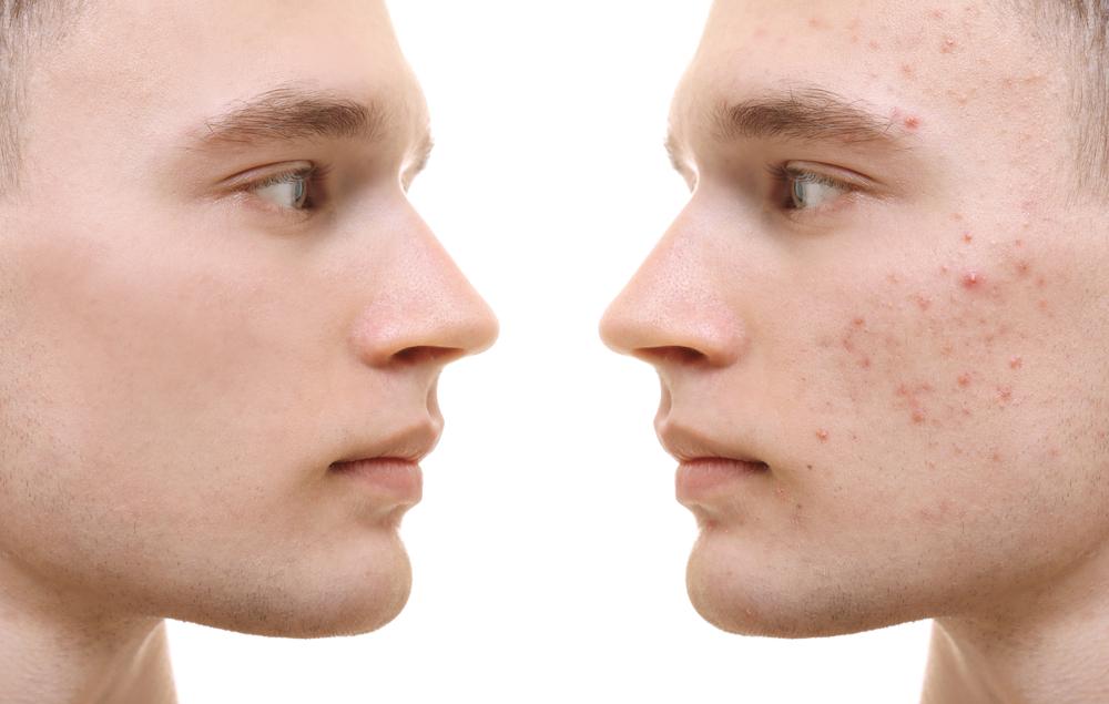 acné traitement naturel