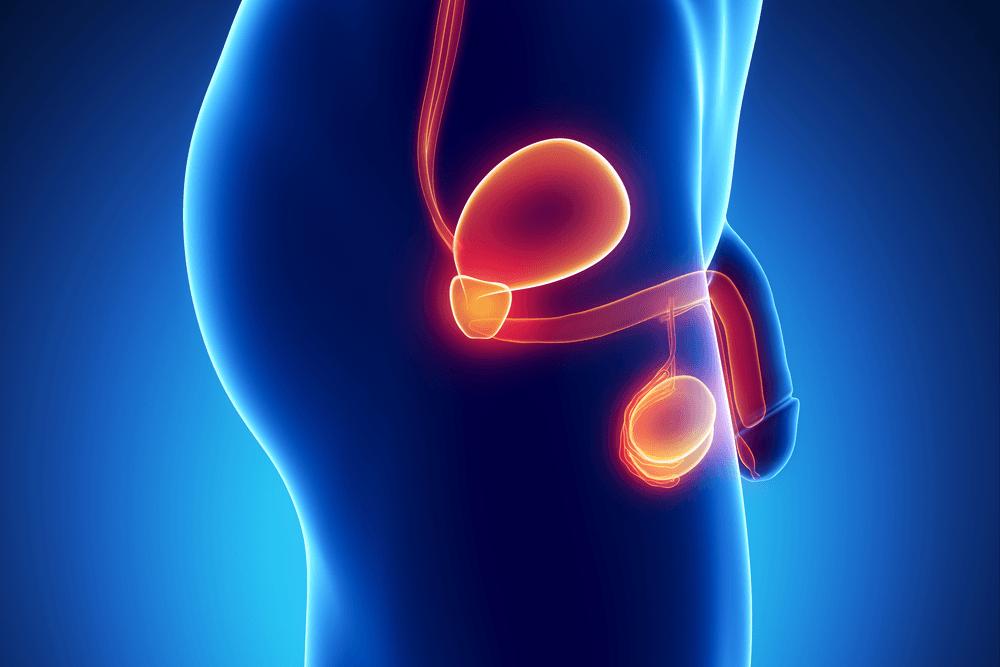 Le cancer de la prostate : prévention, symptômes et traitements