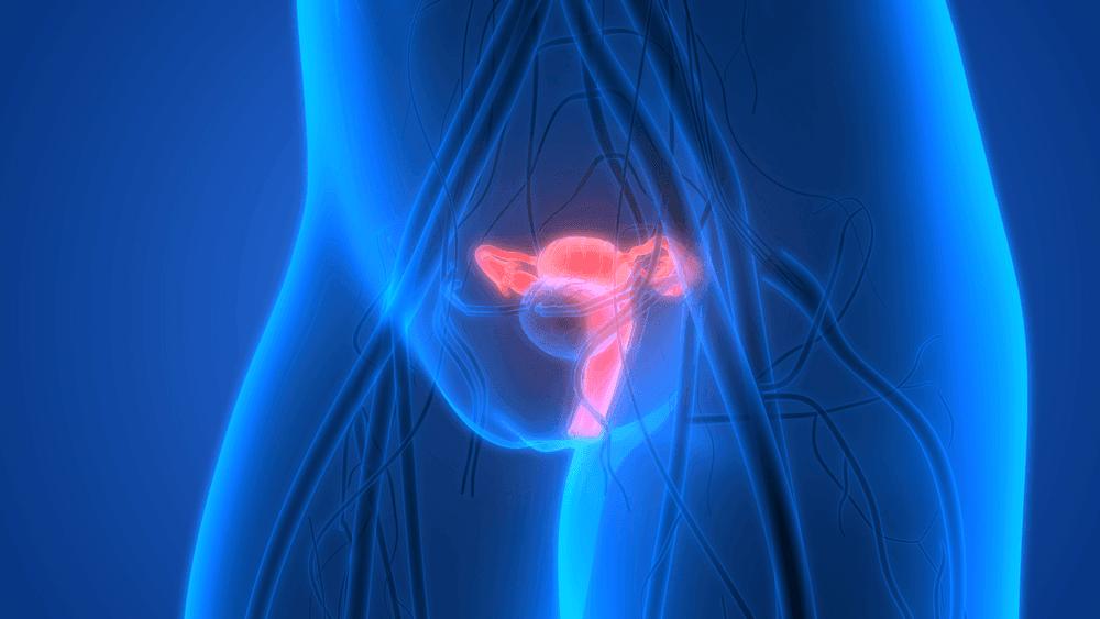 cancer de l'utérus