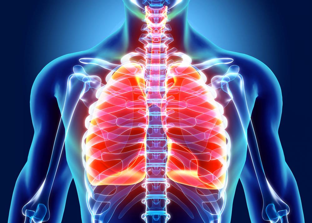 Le cancer du poumon, les symptômes et le traitement du cancer