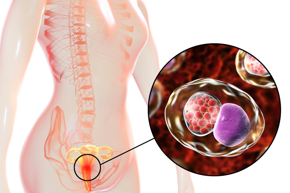Chlamydia : les traitements naturels
