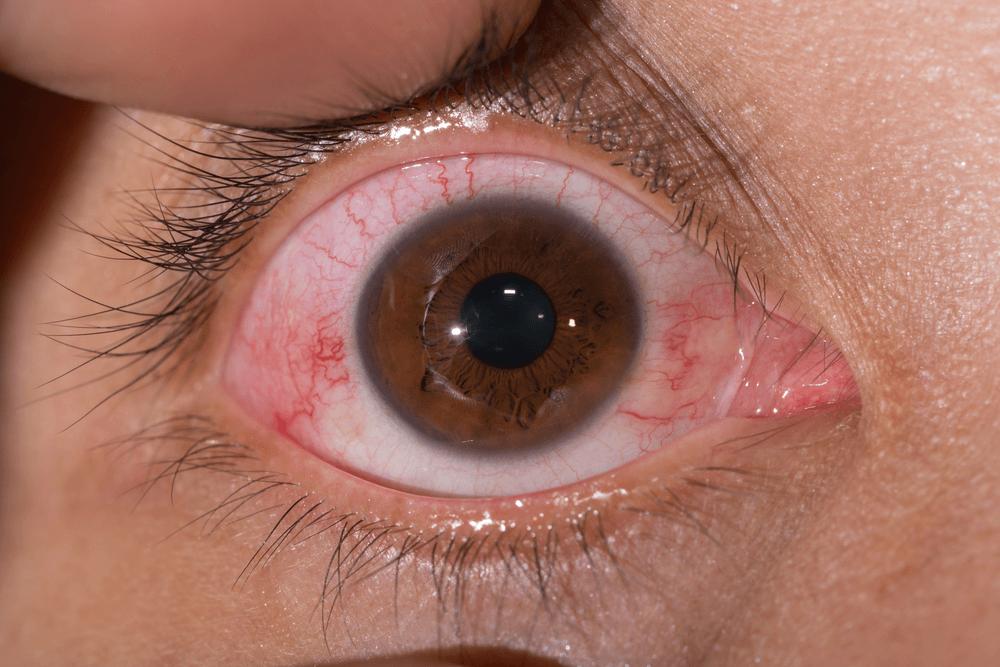 maladie de Lyme symptômes yeux