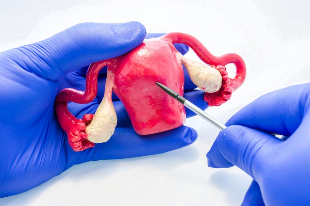 traitement cancer de l'ovaire