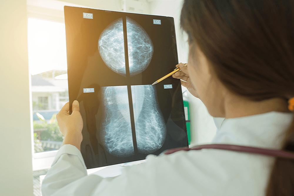 traitement cancer du sein