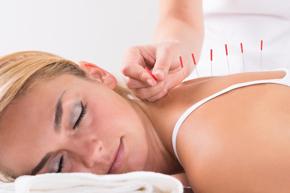 acupuncture paralysie de Bell