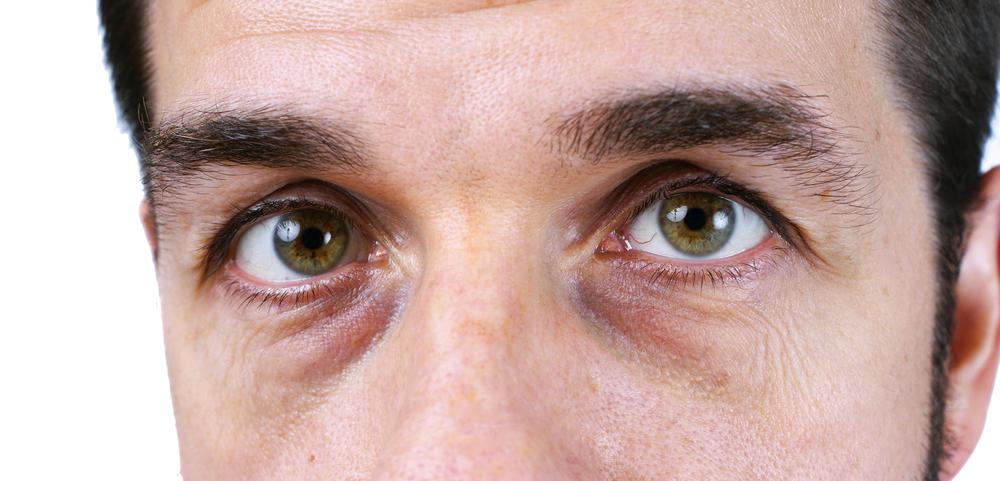 cernes sous les yeux causes