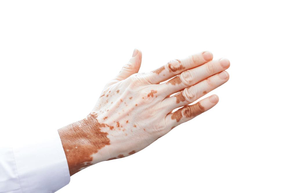 vitiligo causes