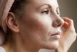 Cicatrices d'acnés : savoir les éliminer définitivement