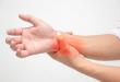 lupus traitements et symptômes