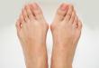 Oignons de pied : symptômes et traitements
