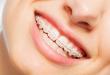 Traitement d'orthodontie : les appareils sont-ils utiles ?