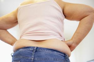 poids excessifs et kératose pilaire