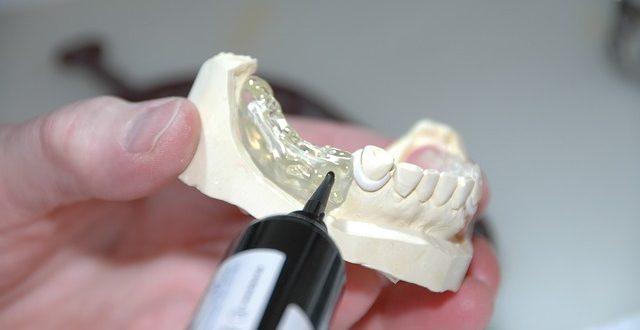 Prothèse dentaire chez les seniors: tout ce que vous devez retenir