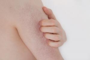 kératose pilaire symptômes