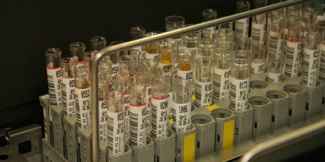 Comment interpréter le taux d'albumine dans les urines?