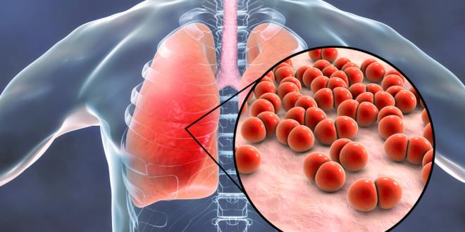 Quelles sont les causes de la pneumonie ?