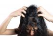 démangeaison des cheveux