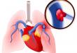 L'embolie pulmonaire : une affection respiratoire potentiellement fatale
