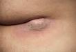 Traitement de kyste pilonidal : comment gérer cette maladie ?