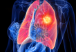 Emphysème pulmonaire : symptômes, causes et traitements
