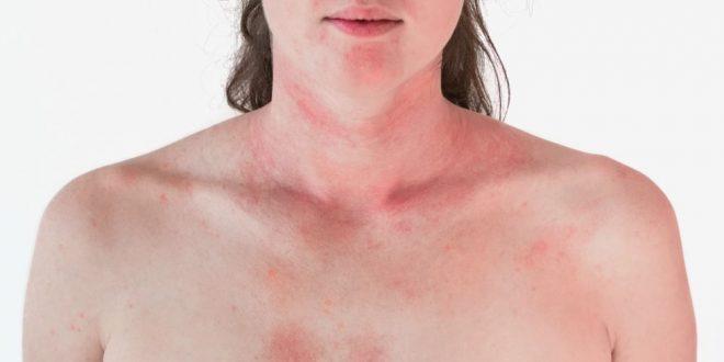 Réaction anaphylactique ou choc anaphylactique : causes, symptômes et traitement