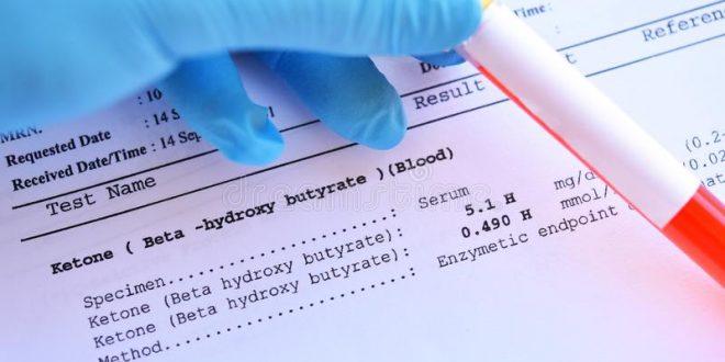 Acidose : symptômes, causes et traitement ?