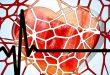 la cardiopathie rhumatismale