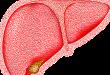 Douleur hépatique: symptômes, complications et traitements