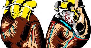 implantation de valve aortique