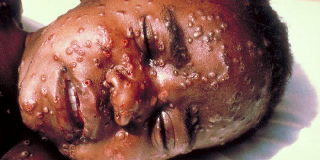 La variole : symptômes, causes et vaccin contre ce virus ?