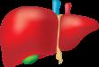 la stéatose hépatique