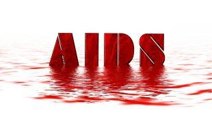 symptômes du VIH SIDA