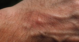 une piqûre de moustique
