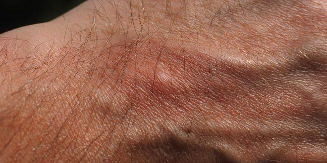 La maladie de Chagas, une infection à trois phases